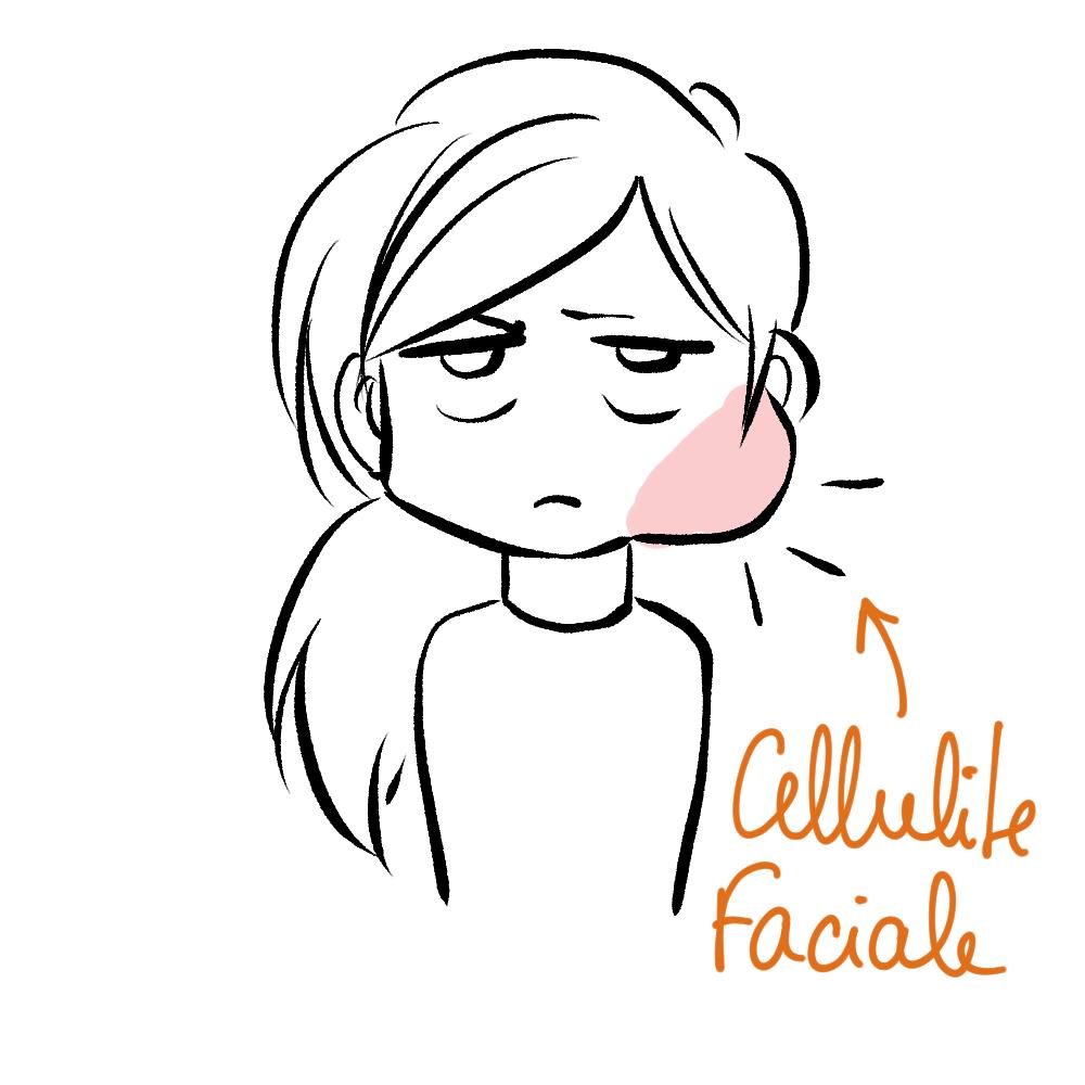 blog bd kuru 2021/05 cellulite faciale
